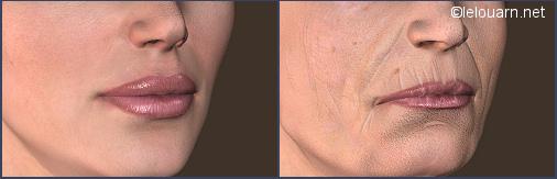 Docteur le Louarn viellissement de la bouche