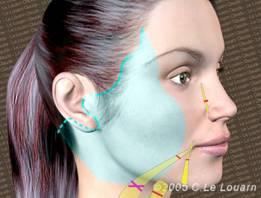 Face Recurve® Lift cervico-facial. Lift cervico-facial Docteur Le Louarn