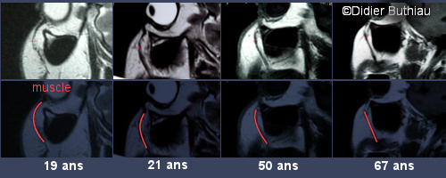 clichés réalisés par le Docteur Didier BUTHIAU, radiologue pendant l'étude IRM ayant permis de confirmer la théorie du Face Recurve®.