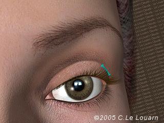 embellissement chirurgical du visage le louarn. Black Bedroom Furniture Sets. Home Design Ideas