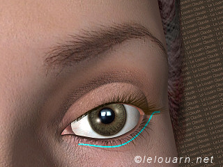1 to 2 mm scar under the eyelashes