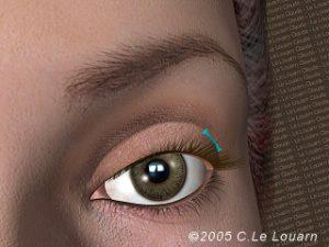 Eyelid surgery Blepharoplasty - Le Louarn